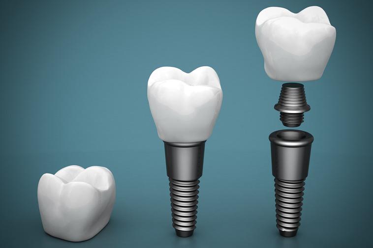 Dental Implants Dentist at Royal Dental Practice in West Hills CA Area